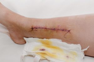 Suture on a damaged leg after surgery.