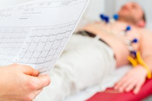 Female doctor analyzing ECG electrocardiogram of patient in hospital